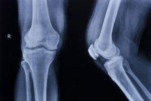 Patientskada och Ersättning vid Skada